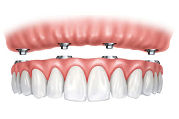 Implantes Dentales Carga Inmediata Clinica Rehberger López-Fanjul