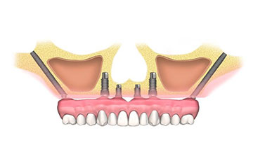 Implantes Zigomáticos Cigomáticos Dentales Clinica Rehberger López-Fanjul