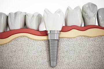 Implantes Dentales Clinica Rehberger López-Fanjul