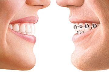 ortodoncia materiales de calidad clinica rehberger