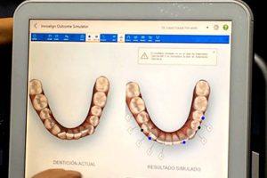 simulacion ortodoncia clinica rehberger