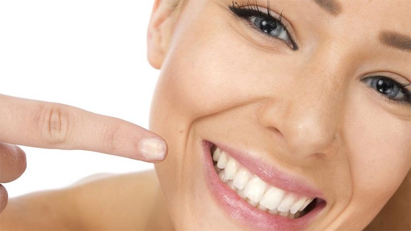 Blanqueamiento dental - Clínica Dental Rehberger - López-Fanjul