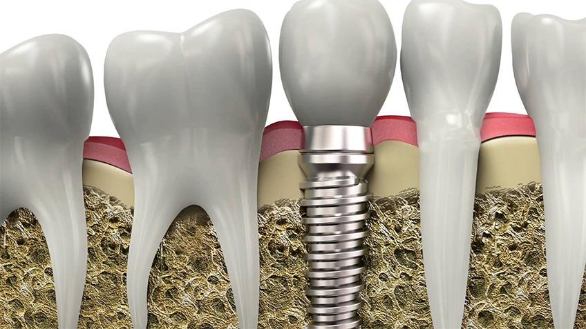 Implantes dentales - Clínica Dental Rehberger - López-Fanjul