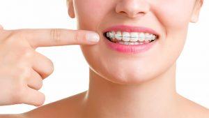 Brackets - Clínica Dental Rehberger - López-Fanjul