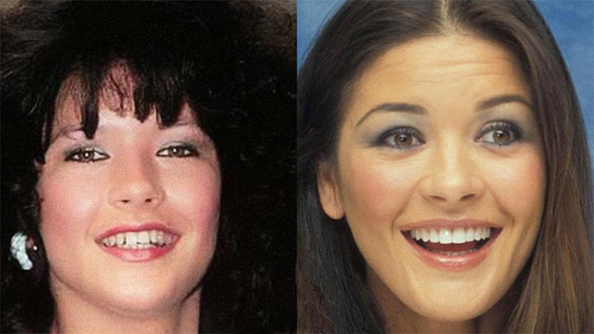 Carillas dentales - Clínica Dental Rehberger - López-Fanjul