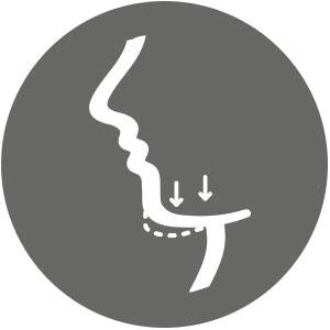 Cirugia Estética Facial Menton Mentoplastia Clinica Rehberger López-Fanjul
