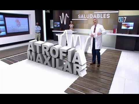 Atrofia-Maxilar-en-TPA