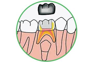Odontopediatría coronas Clinica Rehberger López-Fanjul