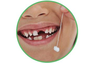 Odontopediatría extracción Clinica Rehberger López-Fanjul