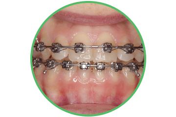 brackets-baja-friccion ortodoncia Clínica Rehberger López-Fanjul Oviedo