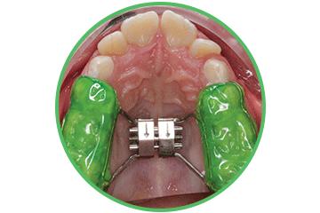 ortodoncia interceptiva Clínica Rehberger López-Fanjul Oviedo