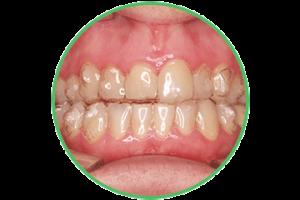 invisalign ortodoncia Clínica Rehberger López-Fanjul Oviedo