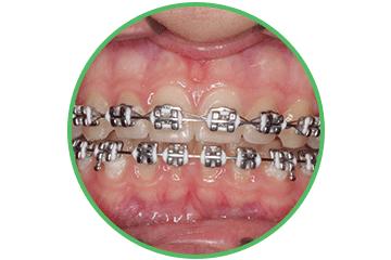 brackets-metalicos ortodoncia Clínica Rehberger López-Fanjul Oviedo