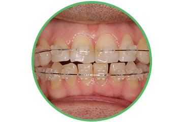 brackets-transparentes ortodoncia Clínica Rehberger López-Fanjul Oviedo