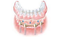 protesis completa sobre implantes dentales Clínica Rehberger López-Fanjul Oviedo