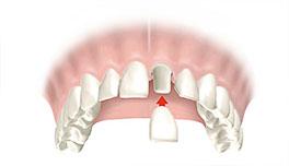 corona dental Clínica Rehberger López-Fanjul Oviedo