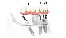 implante dental Clínica Rehberger López-Fanjul Oviedo
