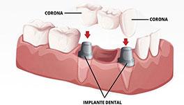 puente implante dental Clínica Rehberger López-Fanjul Oviedo