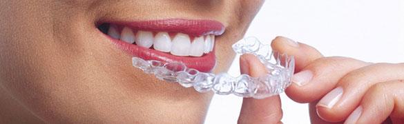 ortodoncia invisalign Clínica Dental y Maxilofacial Rehberger López-Fanjul Oviedo