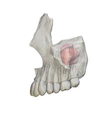 regeneración ósea del seno maxilar Clínica Dental y Maxilofacial Rehberger López-Fanjul Oviedo