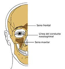 regeneración ósea senos maxilares Clínica Dental y Maxilofacial Rehberger López-Fanjul Oviedo