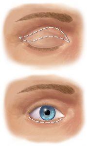Cirugía Estética Facial Blefaroplastia Cirugía Párpados Clínica Rehberger López-Fanjul Oviedo