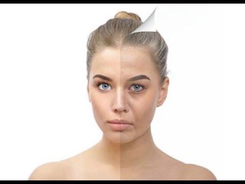 Elimina-las-arrugas-y-combate-el-envejecimiento.-Bótox-y-Ácido-Hialurónico