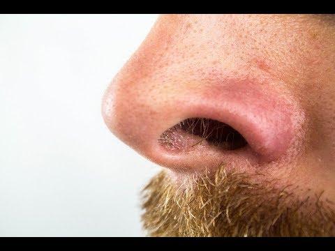Rinoplastia.-Una-nariz-bonita-y-funcional