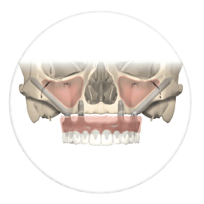 cigomaticos Clínica dental Rehberger López-Fanjul Tu dentista en Oviedo