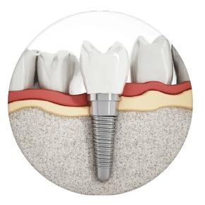 implantes Clínica dental Rehberger López-Fanjul Tu dentista en Oviedo