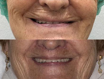 queiloplastia cirugía de labios Clínica Estética Rehberger López-Fanjul Tu clínica en Oviedo