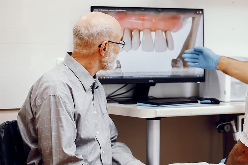 revisiones de implantes dentales en oviedo