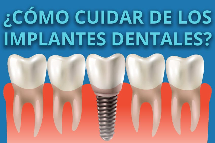 cuidar de los implantes dentales clinica dental rehberger asturias