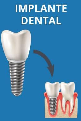 implante dental junto a un diente sano
