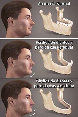 Perdida-de-hueso-por-falta-de-dientes-clinica-dental-maxilofacial-gijon-oviedo-asturias