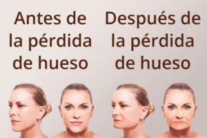 Perdida-de-hueso-por-falta-de-dientes-dentistal-maxilofacial-gijon-oviedo-asturias