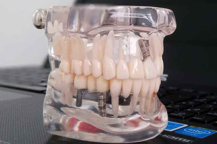 Implantes-dentales-en-asturias