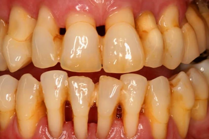 Periodontitis-aguda-perdida-de-dientes-dentista-periodoncia-asturias-gijon-oviedo
