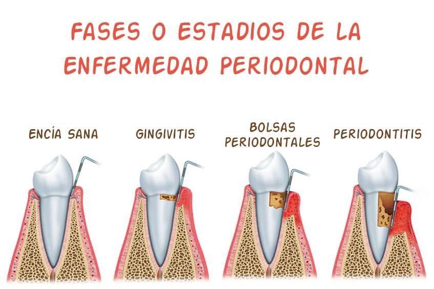gingivitis-bolsa-periodontal-dentista-periodoncia-asturias-gijon-oviedo