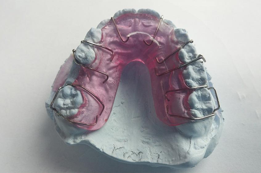 aparato-dientes-mantenedor-espacio-de-ortodoncia-interceptiva-clinica-dental-en-asturias
