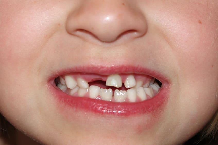 avulsion-dental-caida-diente-diente-traumatismo-dental-dentista-asturias-oviedo-gijon