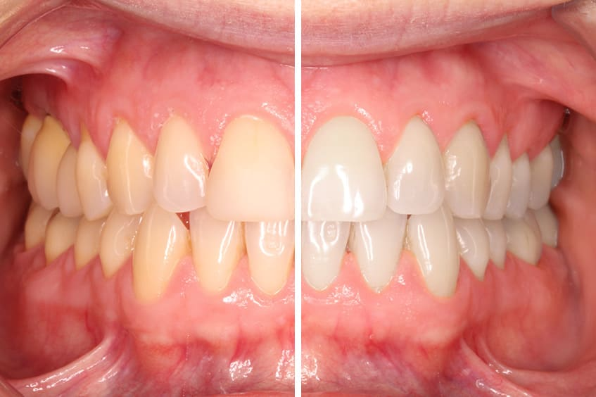 blanqueamiento-dental-antes-despues-clinica-dental-oviedo-asturias