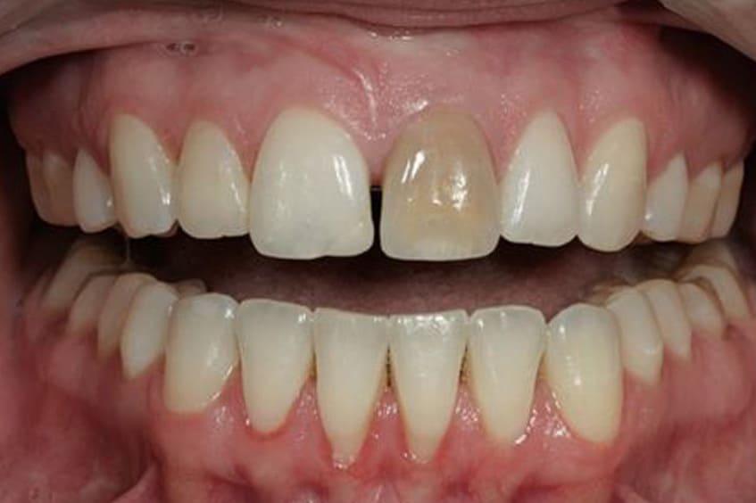 diente-muerto-blanqueamiento-dental-interno-dentista-asturias-gijon-oviedo