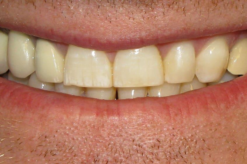 dientes-amarillos-desgaste-dental-blanqueamiento-oviedo