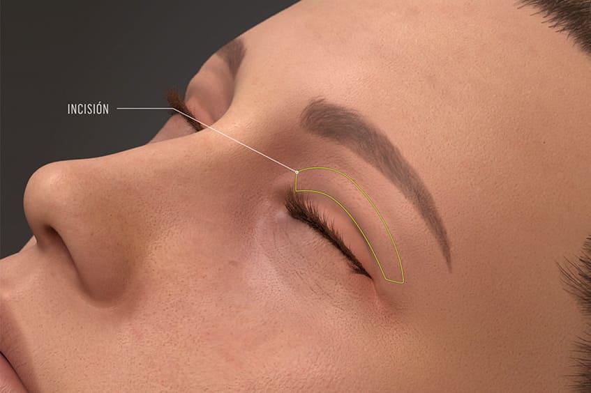 incision-parpado-caido-blefaroplastia-cirugia-de-párapados-operación-de-párpados-en-asturias-oviedo-gijon