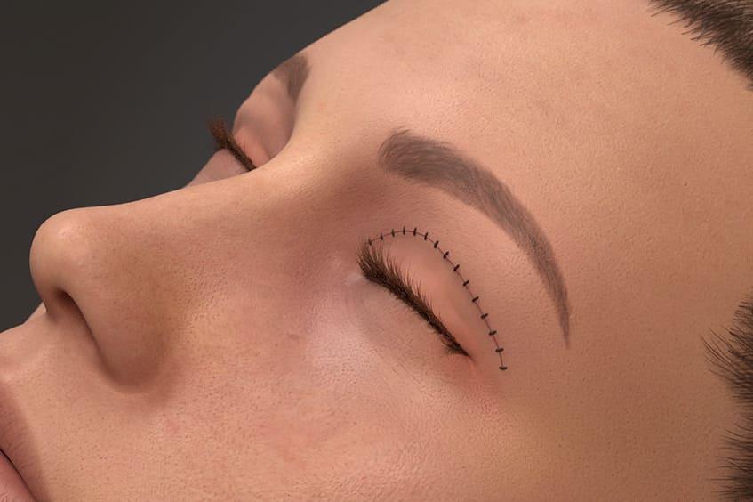 sutura-blefaroplastia-cirugia-de-párapados-operación-de-párpados-en-asturias-oviedo-gijon