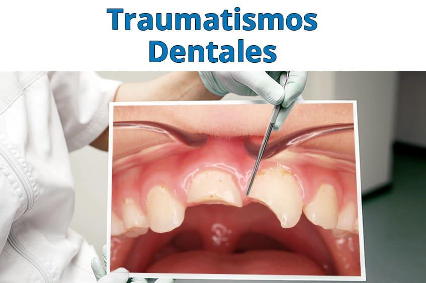 traumatismos-dentales-causas-y-consecuencias-dentista-asturias-gijon-oviedo