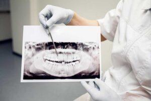 caries-endodoncia-ortopantomografia-escaner-dental-oviedo