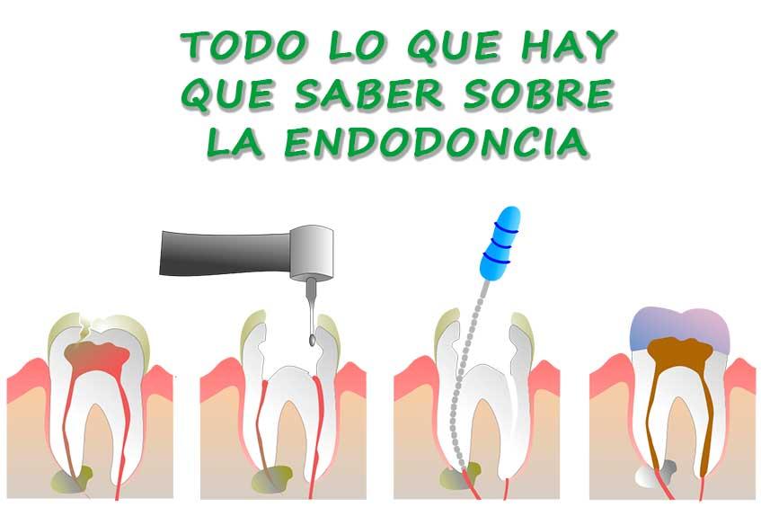 descubre-todo-sobre-la-endodoncia