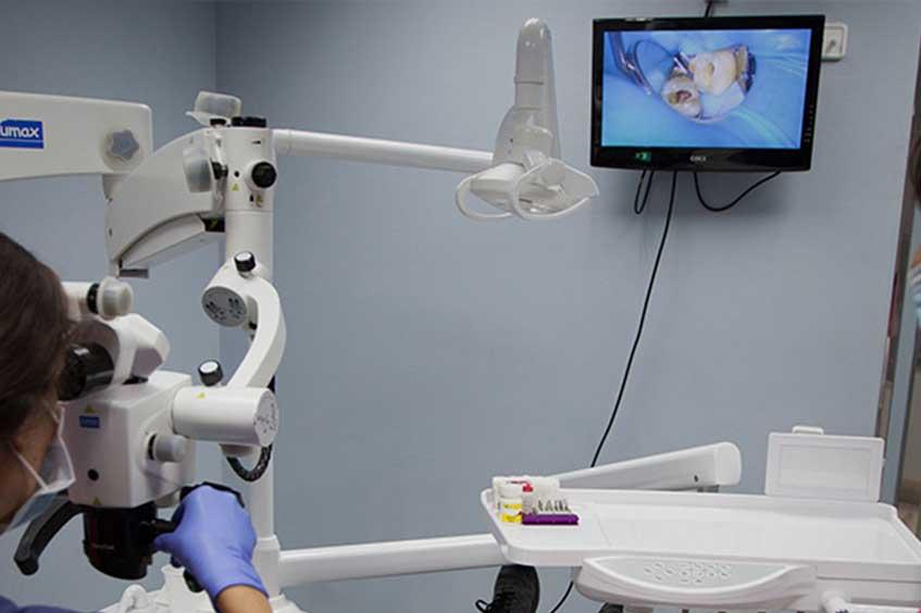 endodoncia-con-microscopio-oviedo-asturias-clinica-dental